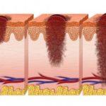 Как предотвратить меланому: ученые объяснили, при каких условиях загар вызывает рак кожи