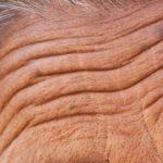 Морщины на лбу могут говорить о повышенном риске смерти
