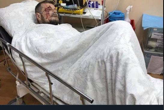 Мосийчук мог оказаться случайной жертвой: бомба ждала другого политика