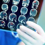 Российские ученые создают систему дистанционной реабилитации речи